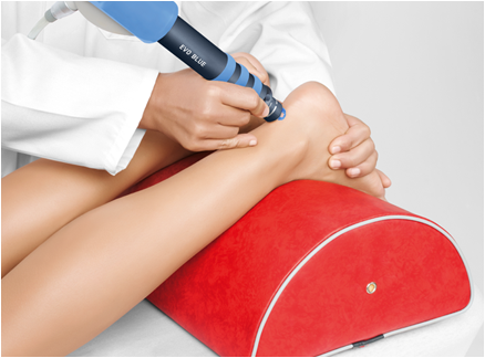 Shock Wave Therapy | Podiatry Services | ACE Feet in Motion