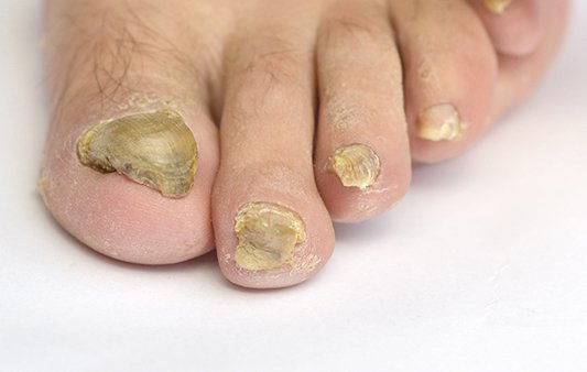 Thick Toenails | Clinical Blog | ACE Feet in Motion